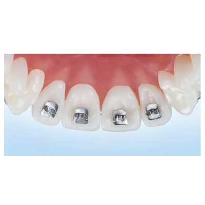 Braided Retainer Wire - Ortho Technology