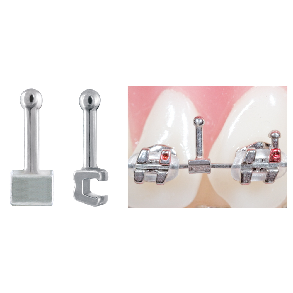 Crimpable Ball Hooks with Split Archwire Opening   Ortho Technology