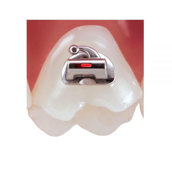 TruCast Low Profile Bondable Buccal Tubes
