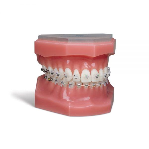 Aesthetic Brackets Sensation Active Ceramic SLB Bracket System Sensation Bracket System Typodont