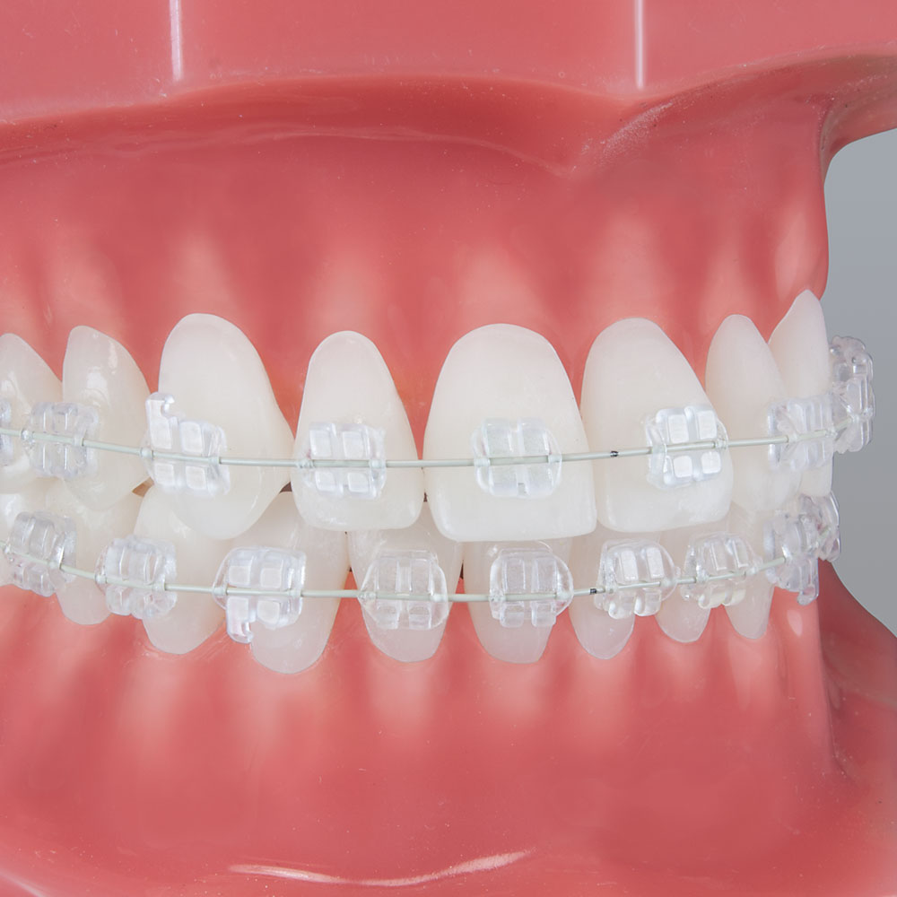 Pure Brackets Mbt 10 Packs Ortho Technology