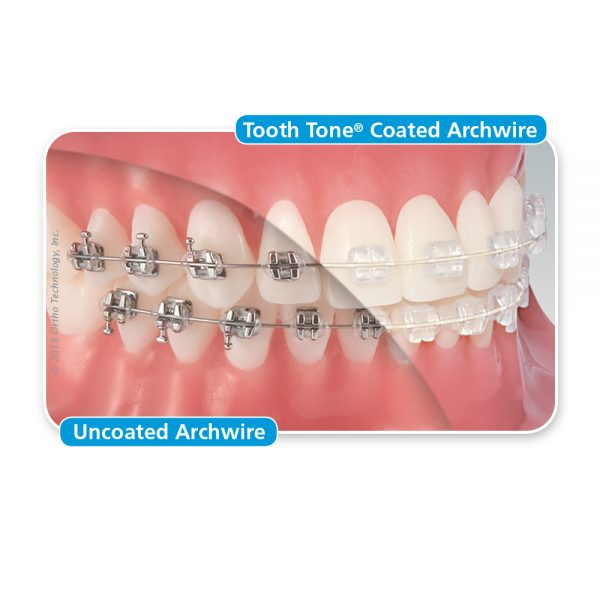 Tooth Tone Archwire Comparison