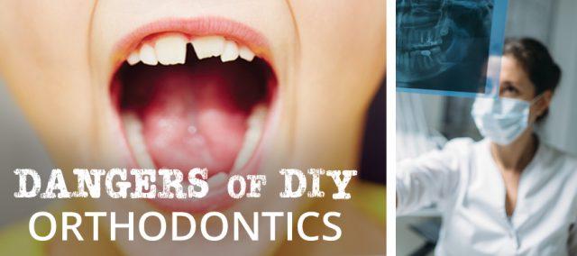 Dangers of DIY Orthodontics
